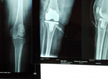 Ρομποτική ολική αρθροπλαστική γόνατος